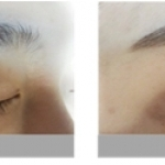 Find Eyebrow Embroidery in Korea