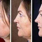 Kybella Double Chin Treatment Connecticut